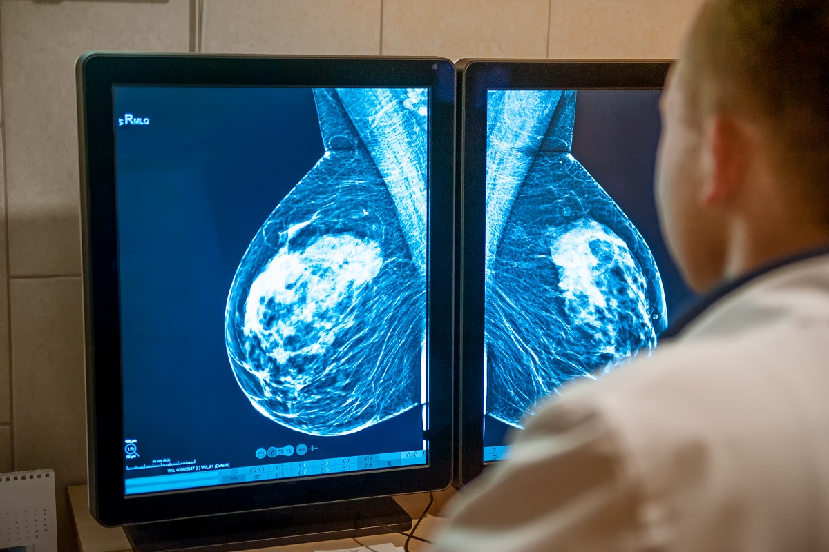 Doctor examines mammogram snapshot of breast of female patient on the monitors. Selective focus
